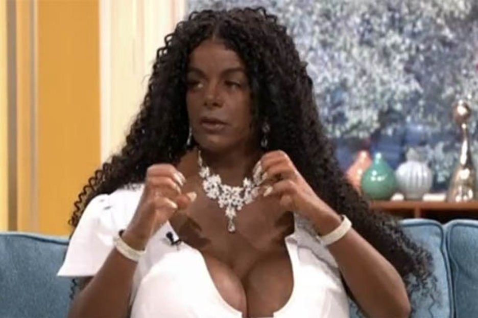 This Morning viewers baffled by woman who turned herself black wanting '20 litre boobs'