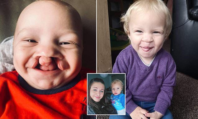 Mother whose toddler son's cleft palate has been corrected