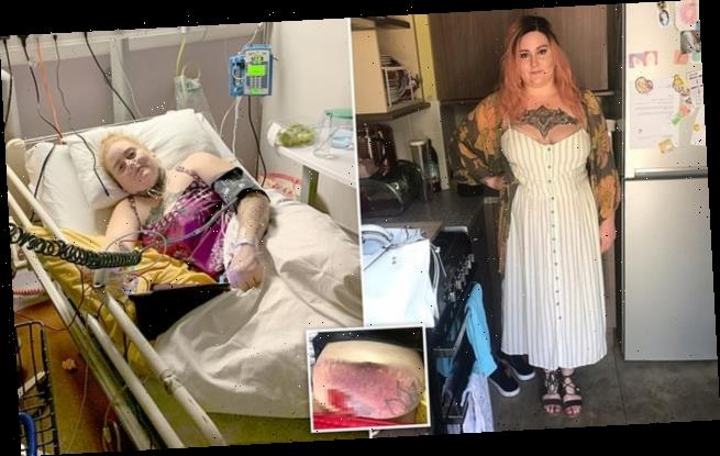 Mother, 29, with endometriosis can't get surgery due to coronavirus