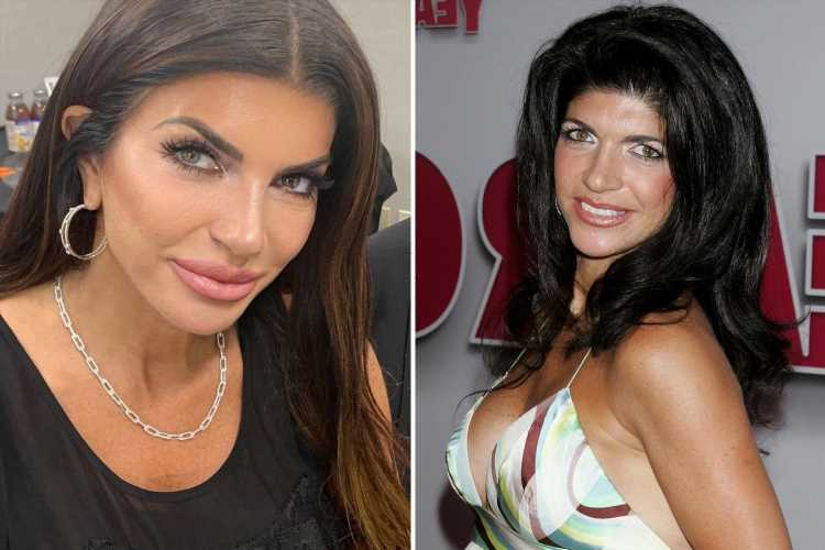 RHONJ fans slam Teresa Giudice for 'platypus lips' and too much 'plastic surgery and Botox'
