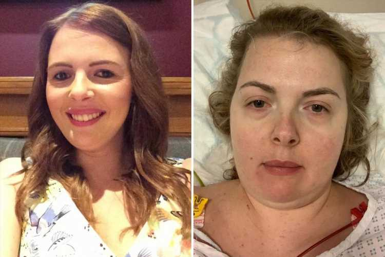 NHS worker, 31, told seizures were nothing serious is diagnosed with terminal cancer